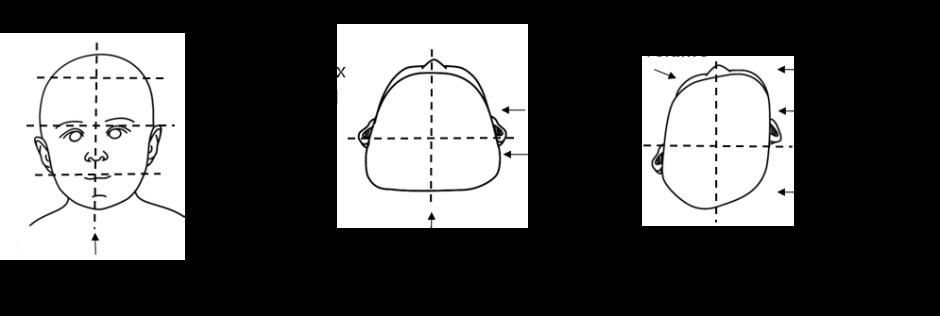 Illustration3.Asymmetry
