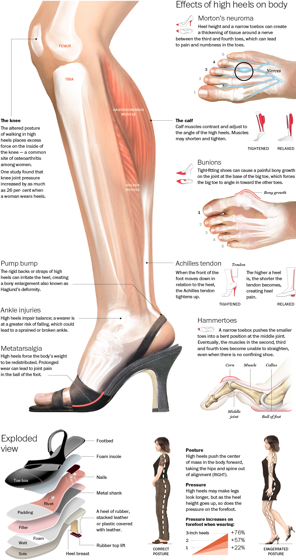 effect of high heels